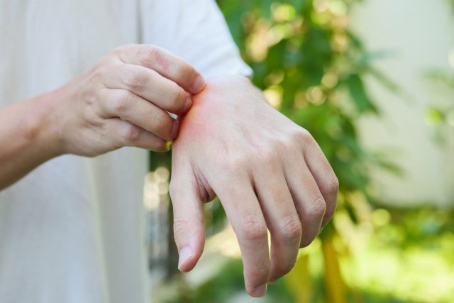 Чесать места укусов комаров нельзя! Можно смазать их кашицей из соды или соли, помогает также обычная зелёнка